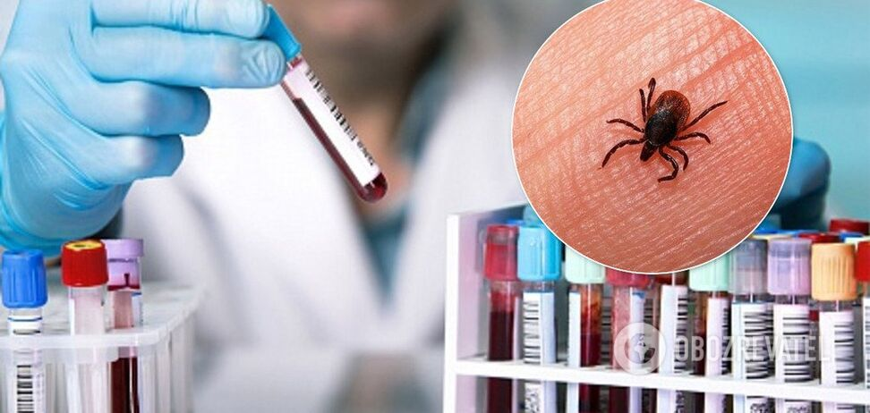Улучшенные тесты для ранней диагностики болезни Лайма