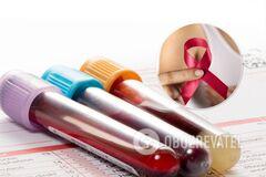 Новый анализ крови эффективнее обнаруживает рак молочной железы