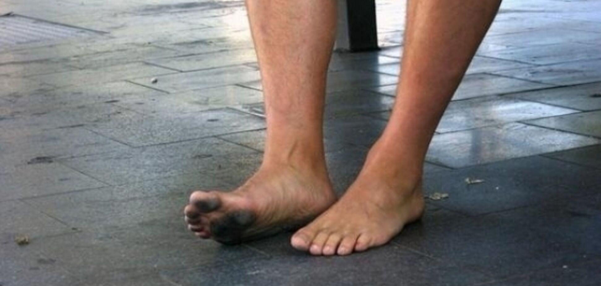 В Днепре голый мужчина разгуливал по городу