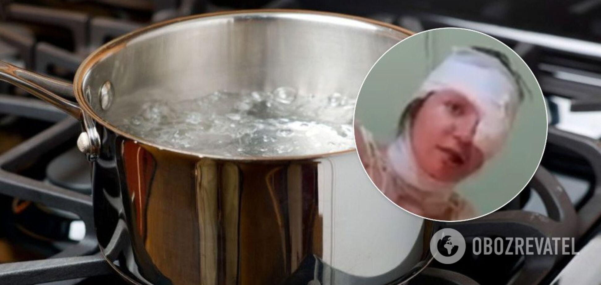 У Запоріжжі чоловік облив дружину окропом: з постраждалою трапилася нова трагедія