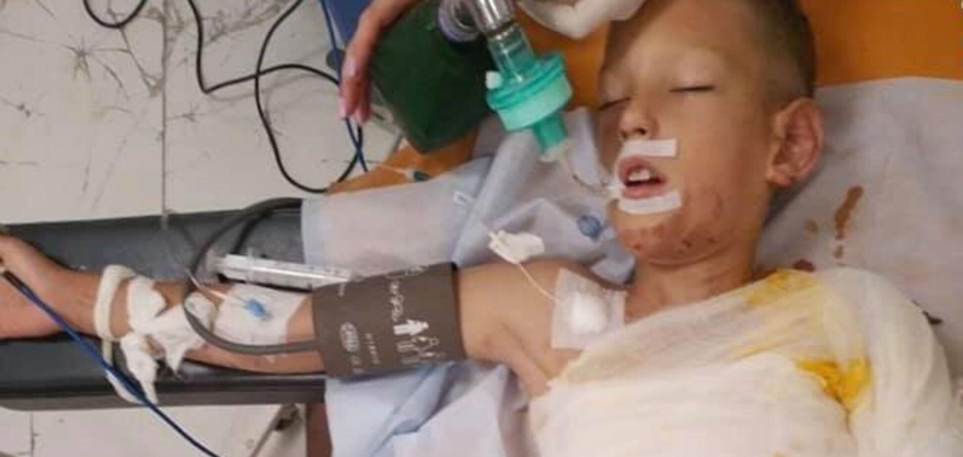 Підпалили під час гри: поліція розкрила подробиці моторошної НП з дитиною в Дніпрі