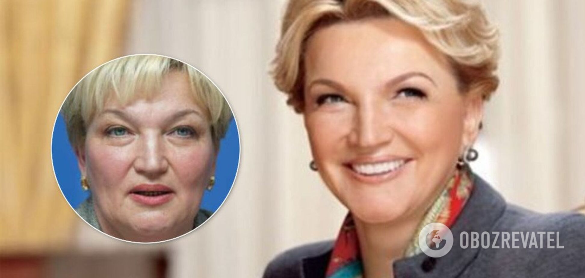 Как выглядела Богатырева до и после пластики: показательные фото