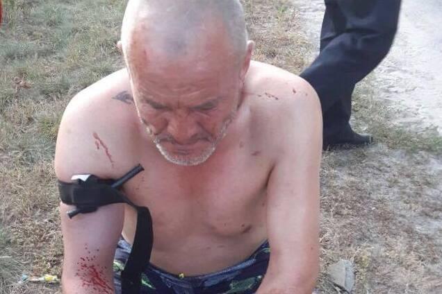 У Києві влаштували криваві розбірки на ножах: фото 18+