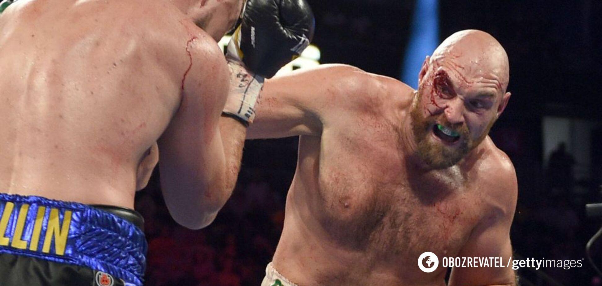 Похмелье в Вегасе: Фьюри после боя 'зашил' лицо и отметил победу в казино
