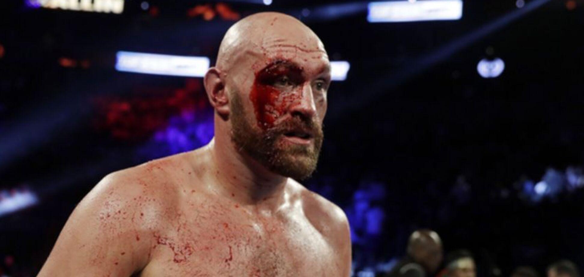 Фьюри отстранили от бокса: названа причина