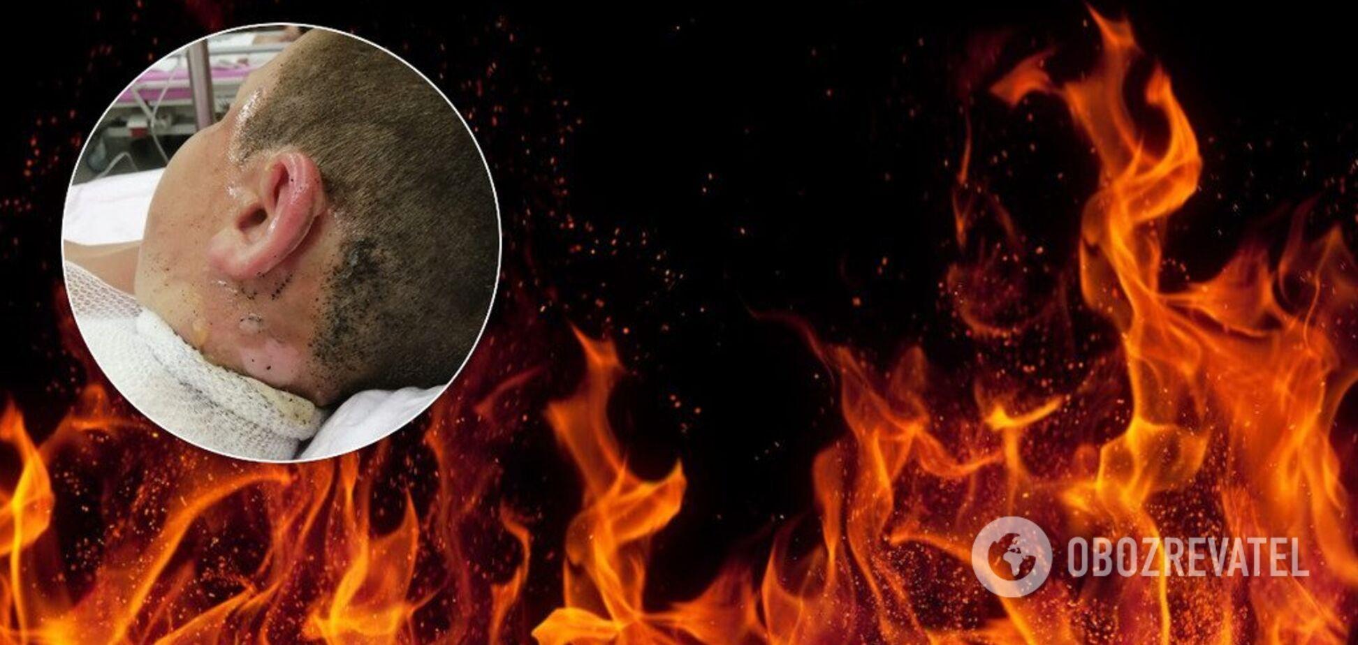 В Турции детей из России облили горящим маслом