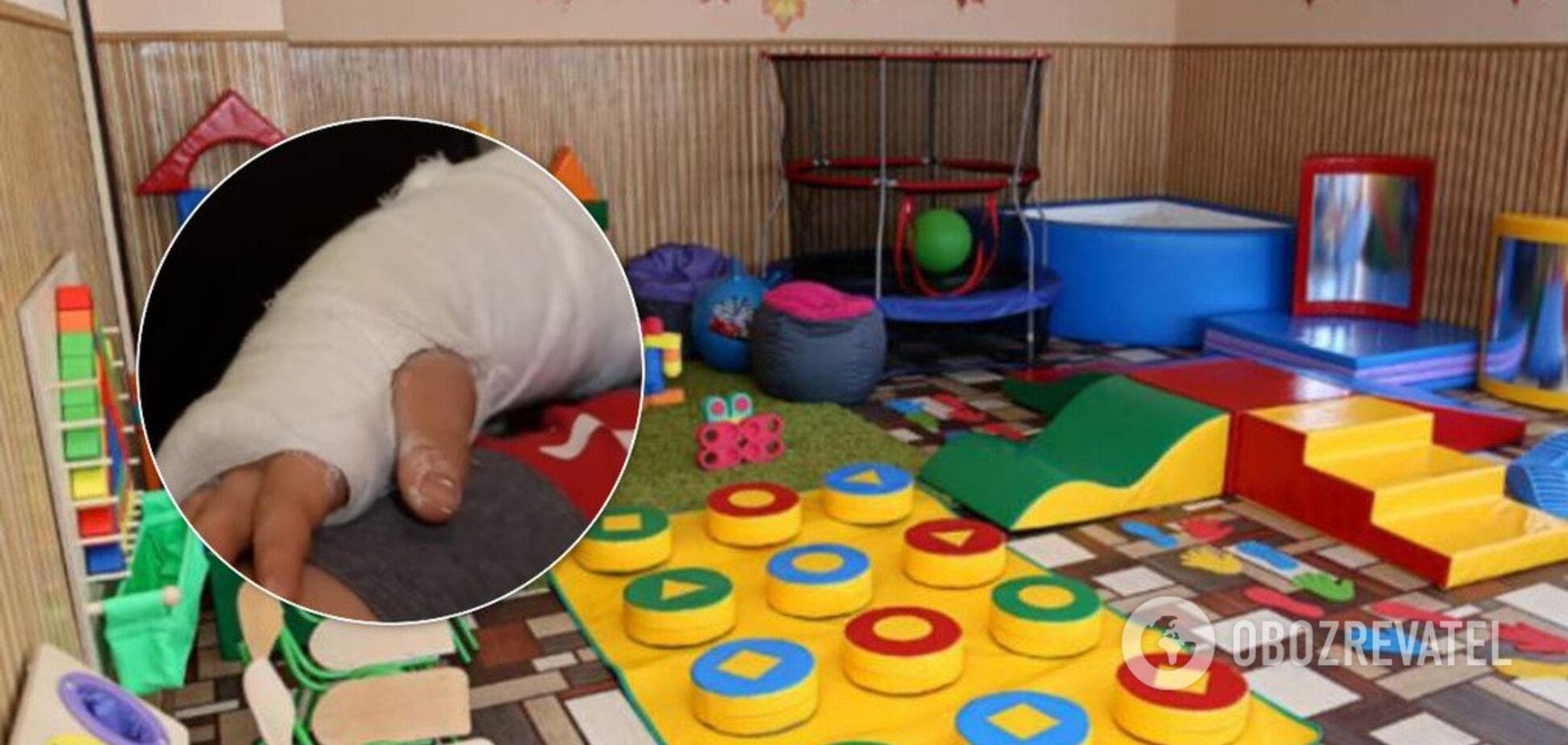 У російському дитсадку дитині зі зламаною ногою не викликали швидку 2,5 години
