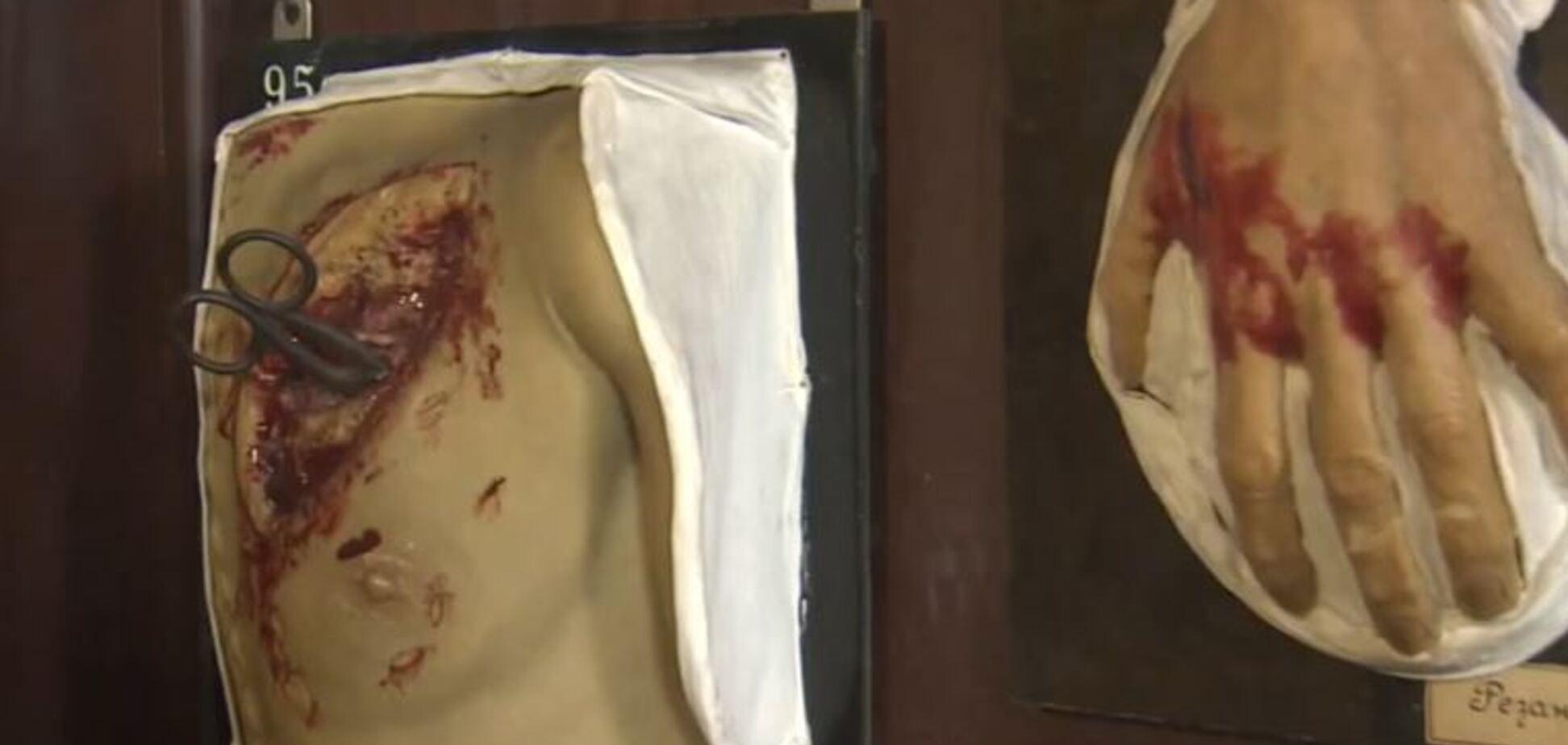 'Во рту откушенный палец, ноги связаны': всплыли жуткие подробности гибели группы Дятлова