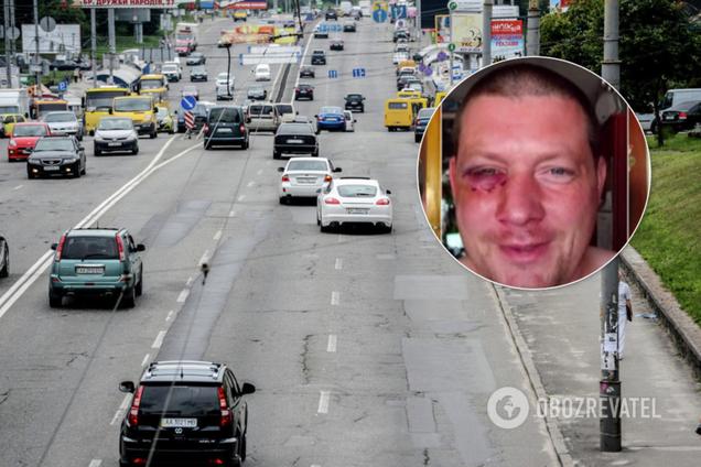 У Києві водії жорстоко побили пішохода за зауваження