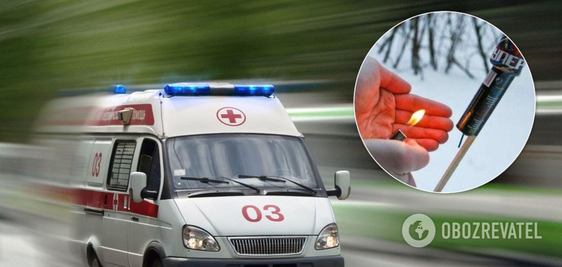 На Житомирщині чоловік постраждав у результаті вибуху салюту