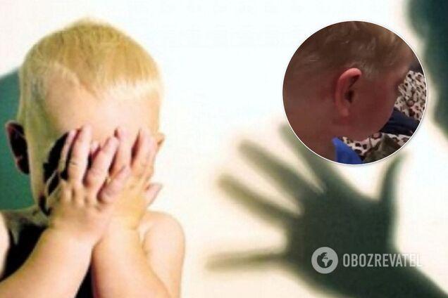 В Омську (Росія) мати і вітчим жорстоко катували дитину