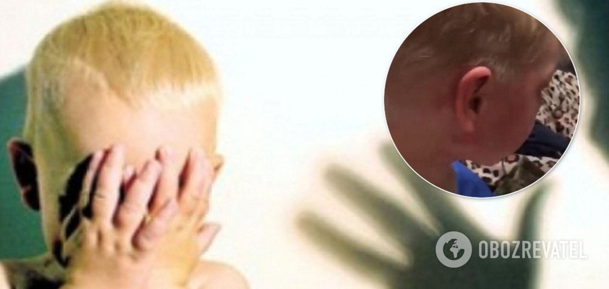 В Омске (Россия) мать и отчим жестоко истязались над ребенком