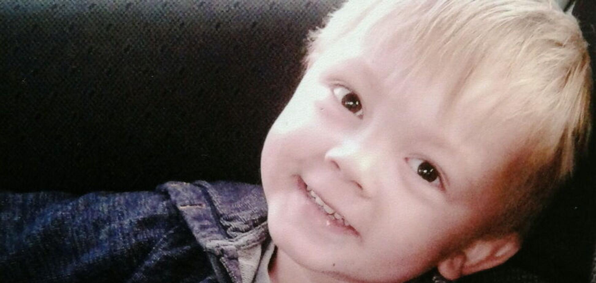 'Алло, тату, я тебе любу': 3-річний хлопчик помер від вітрянки
