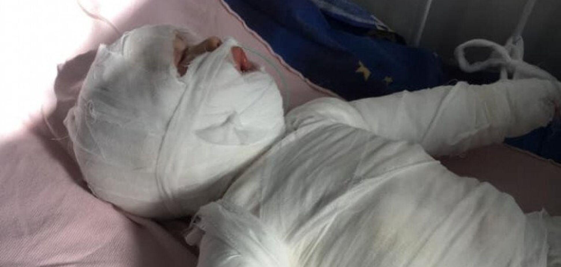 Годовалый ребенок ошпарился кипятком на Одесщине