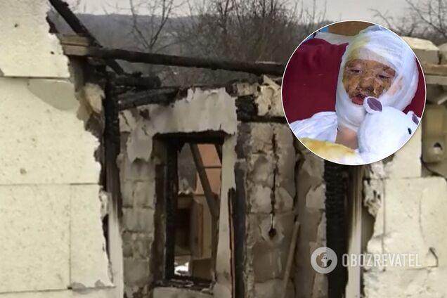 В Черновцах пьяный отец поджег 16-летнюю дочь и дом