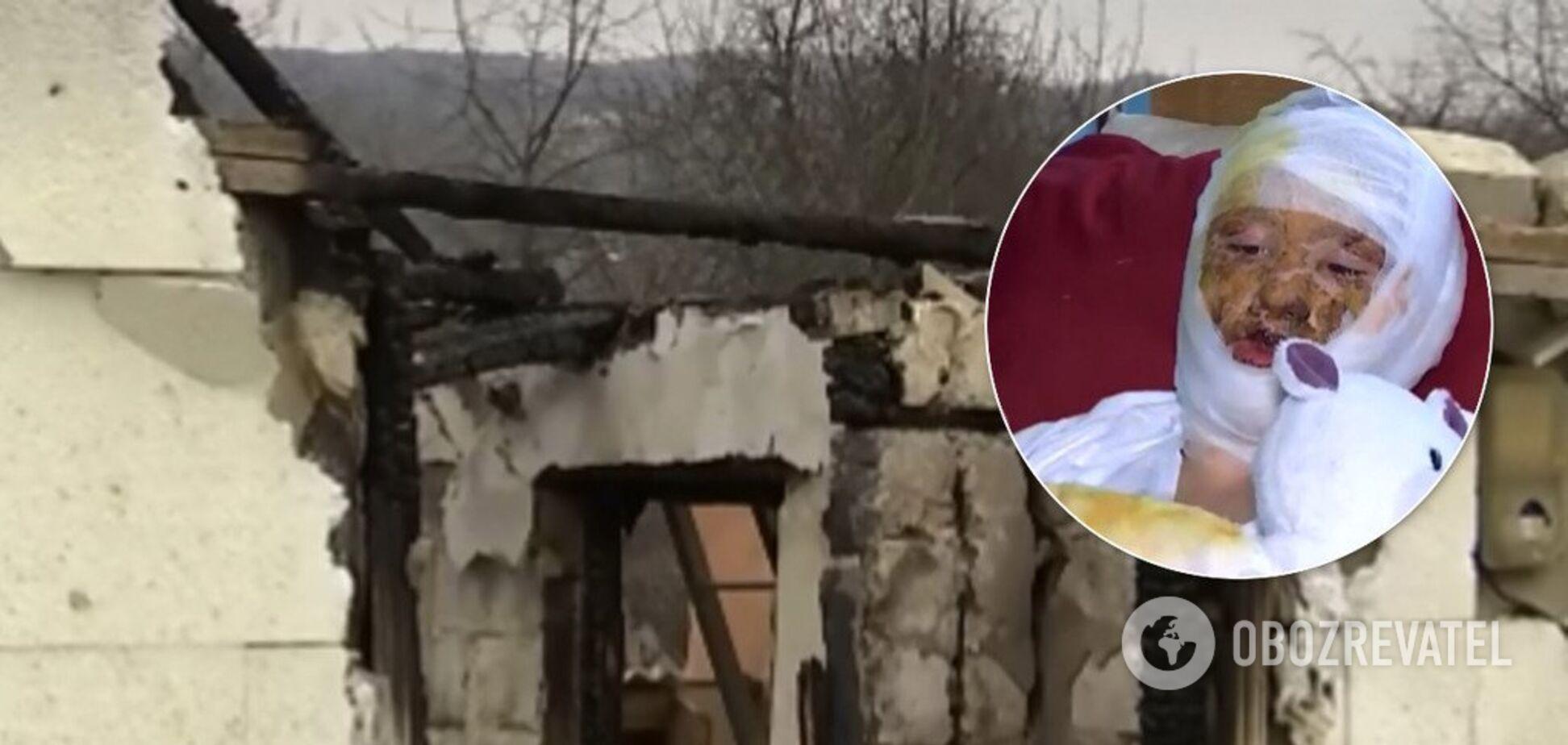 Отец поджег 16-летнюю дочь в Черновцах: выяснились детали зверской расправы. Фото и видео