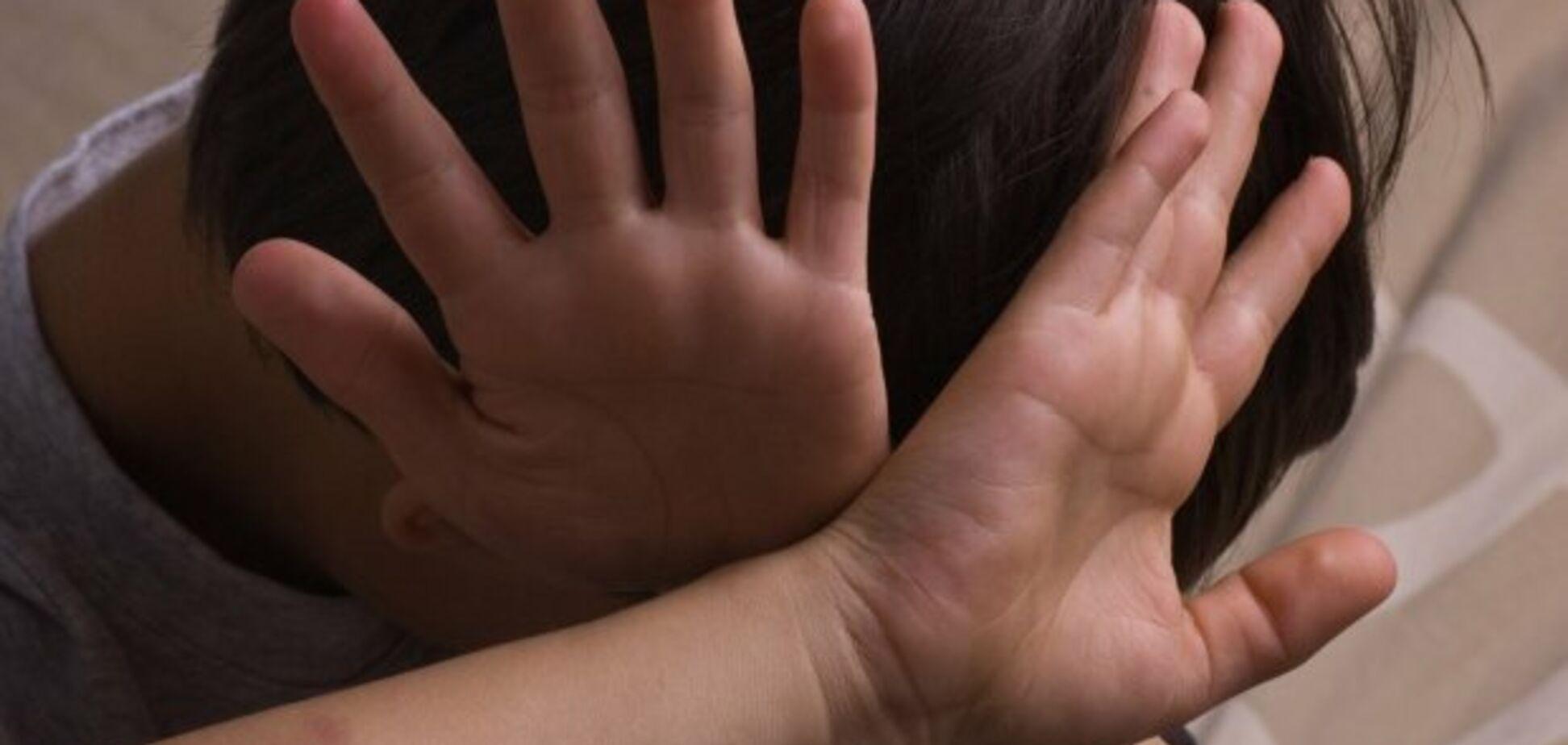 Наложили швы: 'учитель года' жестоко избила третьеклассника