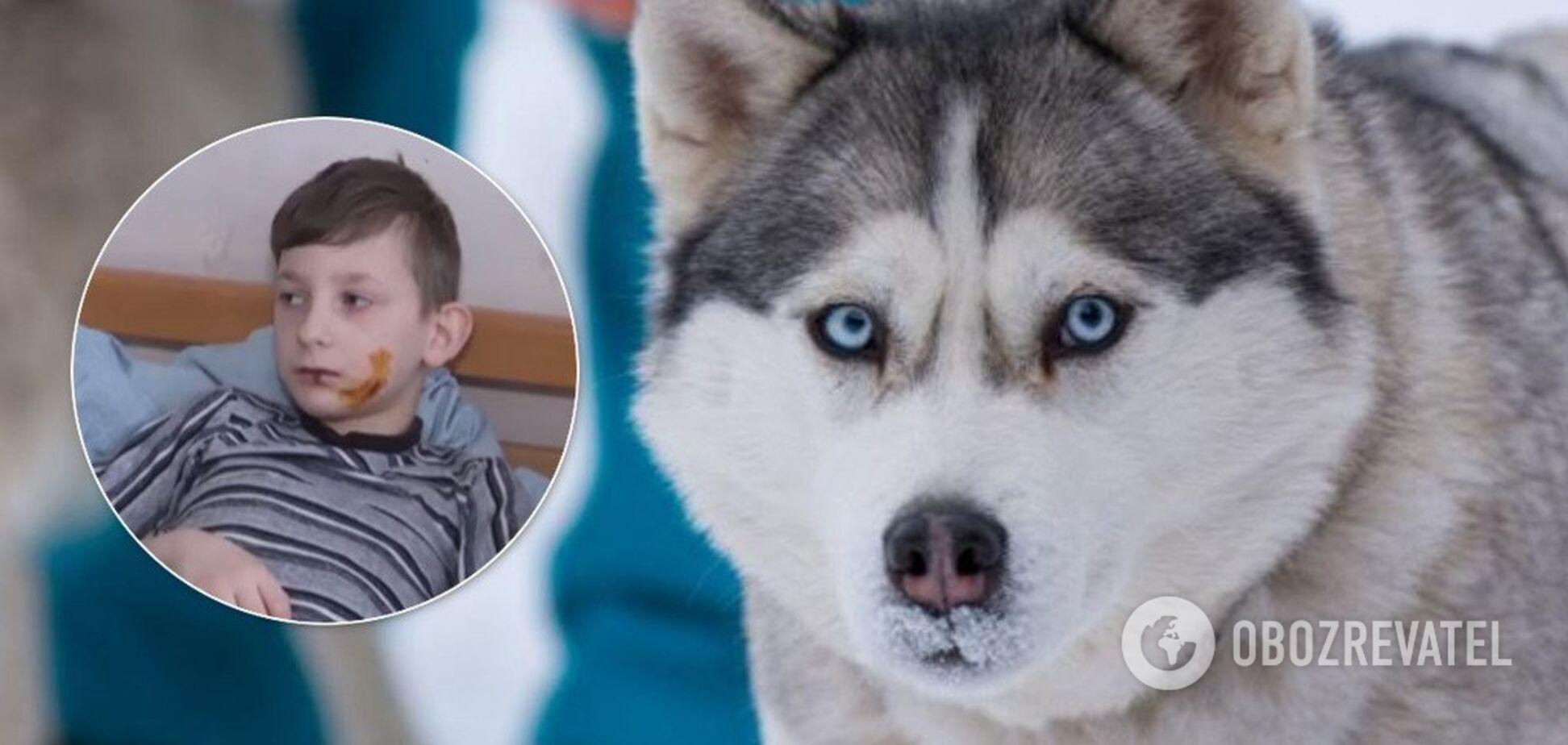 У Тернополі хаскі погриз дитині обличчя й тіло: моторошні подробиці
