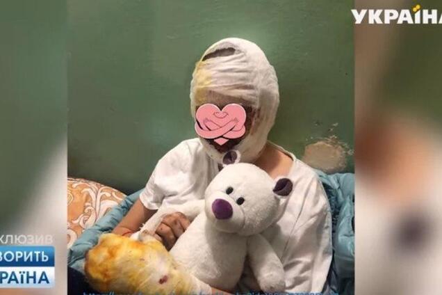 """""""Как мумия"""": стало известно, как отец изувечил дочь в Черновцах"""