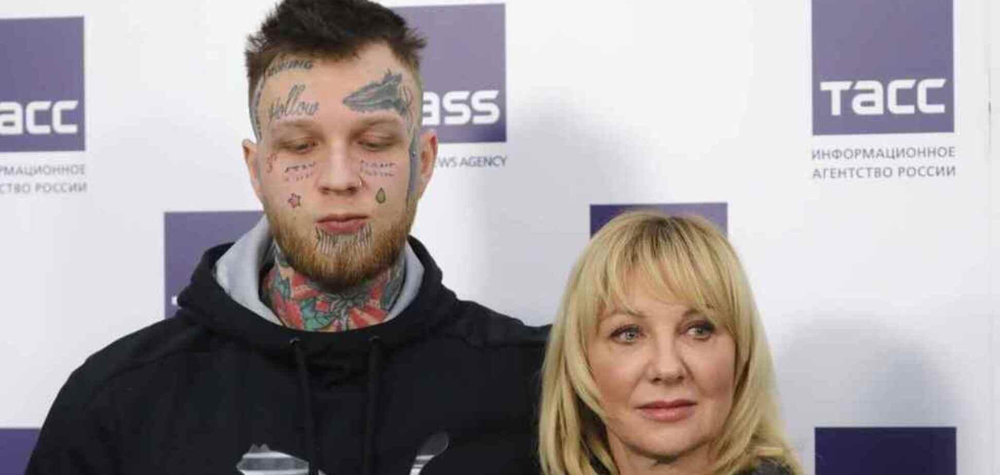 Сын запрещенной в Украине Яковлевой показал обезображенное лицо: фото