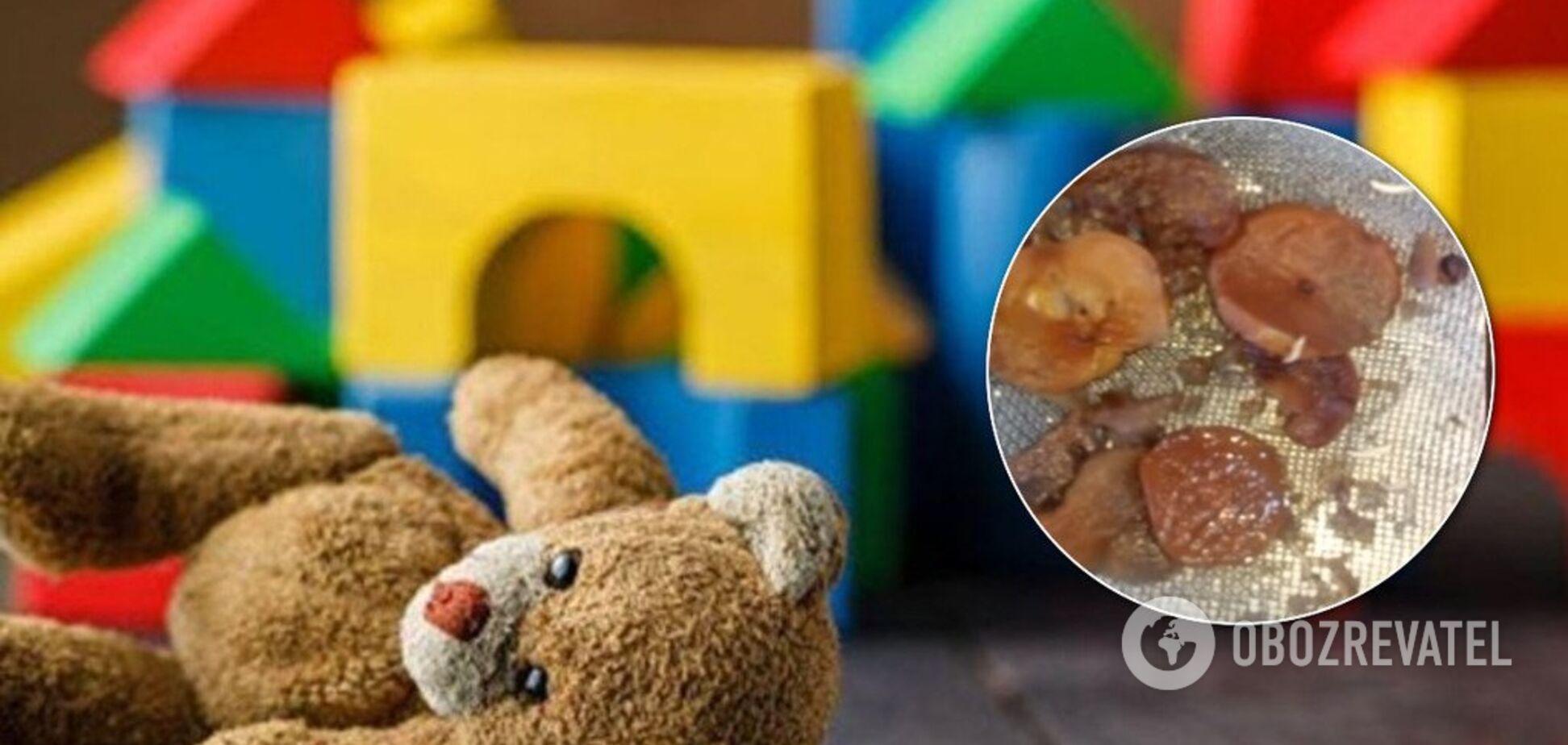 Руководство отрицает: в Черкасской области детей в садике кормили червяками