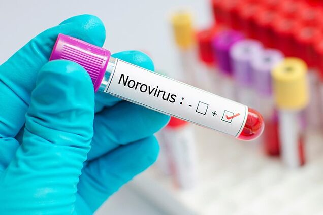 В магазины Украины попал норовирус из Франции