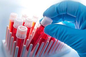 Определение чувствительности к тимогену