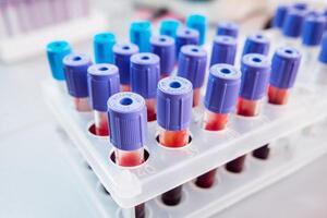 Антитела к вирусу гепатита Е (anti-HEV) IgM