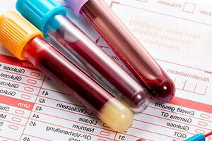 Определение авидности антител IgG к цитомегаловирусу
