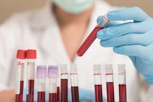 Антитела к антигенам гельминтов (описторхисов, эхинококков, токсокар, трихинелл) IgG (скрининг)