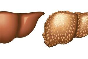 Эхинококкоз печени: причины возникновения и основные симптомы, способы лечения заболевания