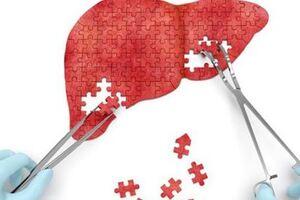 Хронический гепатит: причини виникнення та основні симптоми, способи лікування захворювання