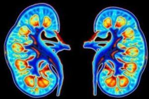 Хронический пиелонефрит: причины возникновения и основные симптомы, способы лечения заболевания