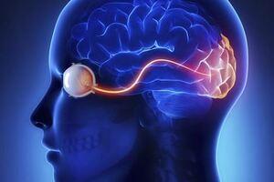 Неврит зрительного нерва: причини виникнення та основні симптоми, способи лікування захворювання