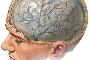 Гипертензивная энцефалопатия: причини виникнення та основні симптоми, способи лікування захворювання