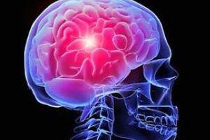 Менингоэнцефалит: причины возникновения и основные симптомы, способы лечения заболевания