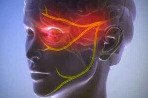 Невралгия тройничного нерва: причини виникнення та основні симптоми, способи лікування захворювання