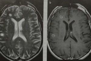 Энцефаломиелит: причини виникнення та основні симптоми, способи лікування захворювання