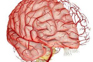 Церебральный атеросклероз: причини виникнення та основні симптоми, способи лікування захворювання