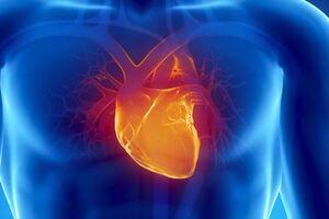 Симптомы причины и лечение острого инфаркта миокарда