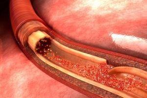 Расслоение аорты: причини виникнення та основні симптоми, способи лікування захворювання
