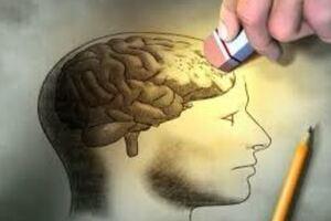 Сосудистая деменция: причини виникнення та основні симптоми, способи лікування захворювання