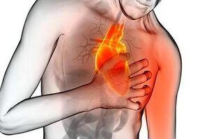 Стенокардия: причини виникнення та основні симптоми, способи лікування захворювання