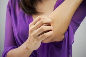 Герпетиформный дерматит: причины возникновения и основные симптомы, способы лечения заболевания
