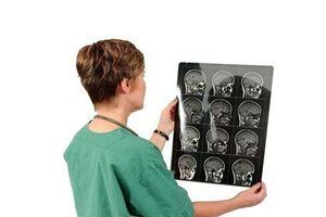 Аденома гипофиза: причины возникновения и основные симптомы, способы лечения заболевания