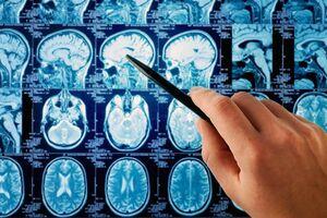 Опухоль (рак) головного мозга: причини виникнення та основні симптоми, способи лікування захворювання