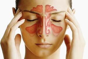 Риносинусит хронический: причини виникнення та основні симптоми, способи лікування захворювання