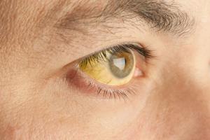 Синдром Ротора: причины возникновения и основные симптомы, способы лечения заболевания