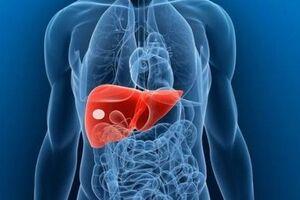 Абсцесс печени: причини виникнення та основні симптоми, способи лікування захворювання