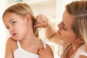 Дерматит: причины возникновения и основные симптомы, способы лечения заболевания